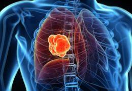 Cáncer de pulmón por gas radón, ¿cómo se manifiesta la enfermedad?